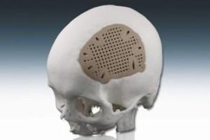 cranial-implant